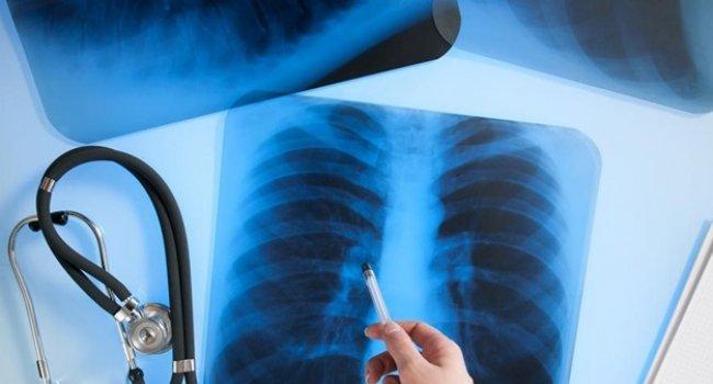 Туберкулез – одно из самых распространенных в мире инфекционных заболеваний. Хотя о нем известно уже достаточно давно, а доступной информации немало, люди все еще продолжают верить в ряд мифов, касающихся туберкулеза.
