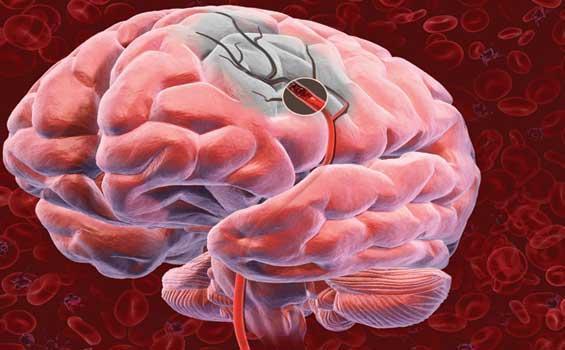 Ученые Медицинского центра при Колумбийском университете (Columbia University Medical Center, CUMC, США) выяснили, каким образом можно уменьшить степень повреждения головного мозга, полученного в результате инсульта.