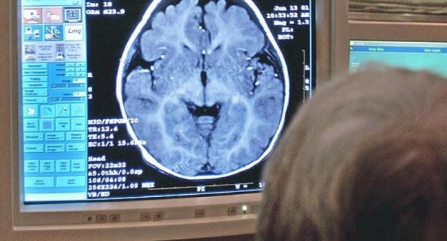 Лечение антибиотиками детей с травмами мозга может быть опасно