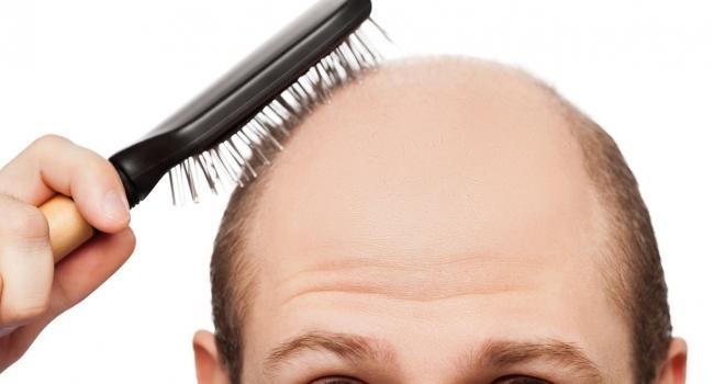 Некоторые заболевания могут приводить к преждевременному облысению. Вот некоторые из проблем, из-за которых мужчины начинают лысеть.